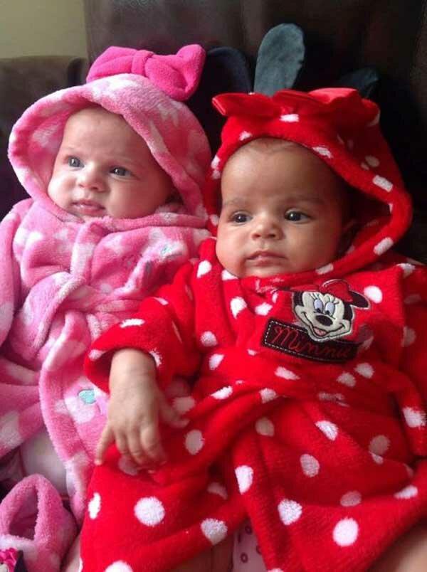 Снимок этих близняшек шокировал интернет!